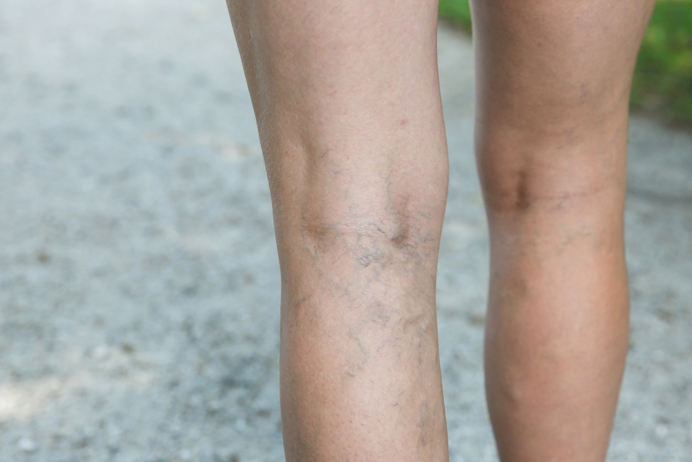 traitement des varices - Varicose veins treatment